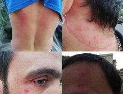 Aggressione Sporting Futsal Limatola