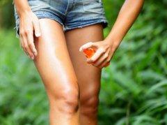 Rimedi contro le punture di zanzara